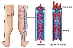 Deep vein thrombosis of the lower extremities.