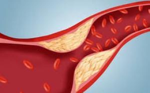 Blood Vessel Blockage